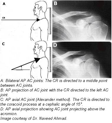 Joint X Ray together with 18341277 in addition Sprained Ac Joint besides Article31 besides Redirect. on clavicle x ray positioning