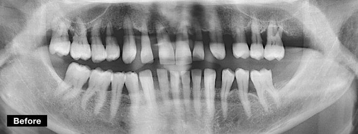 Dentcof - Case 27 - Antonia