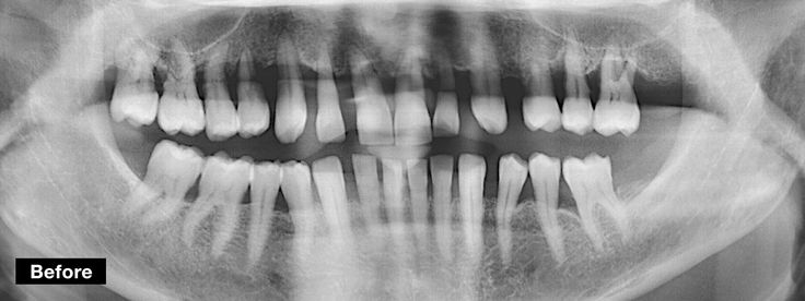 Dentcof - Case 27 - Antonia