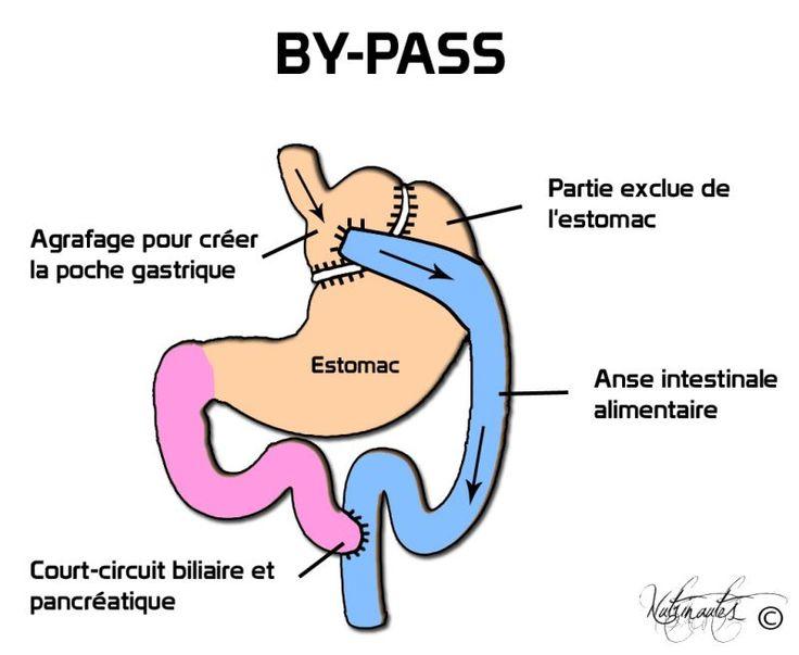 Faites une opération de bypass gastrique en Tunisie en toute sécurité à un prix malin, tout ce que vous devez savoir sur votre procédure chirurgicale