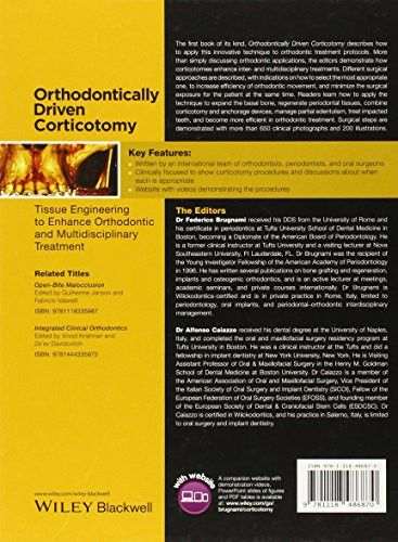 Orthodontically Driven Corticotomy: Tissue Engineering to Enhance Orthodontic and Multidisciplinary