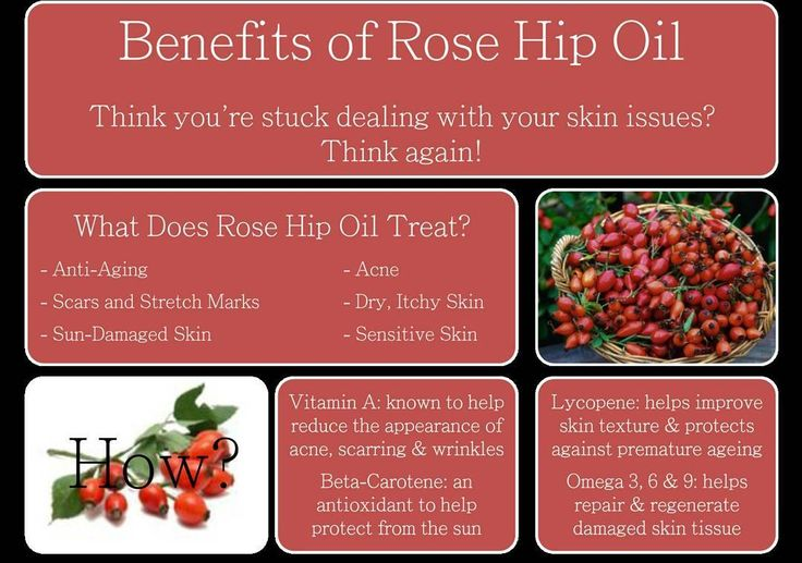 Excited to share the latest addition to my #etsy shop: Rosehip Seed Oil - Pure Organic Essential Aromatherapy Oil - Pure Organic Rose Hip Seed Oil - Natural Skin Care - Dry Skin - Face Oil #essentialoils #aromatherapy #health #massage #stress #skincare #o