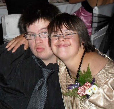 dating a woman with down syndrome
