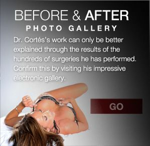 A picture is better than words. Check out Dr. Cortes Before and After Photo Gallery at www.rejuvenusaesthetics.com