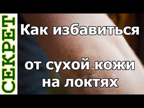 Как избавиться от сухой кожи на локтях - YouTube