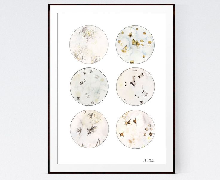 Urine Crystals in watercolor! #Science, #Scienceart, #biology, #chemistry, #labtech, #nurse, #medical, #medicalart, #art, #scienceprint #laboratory  by sandraculliton on Etsy