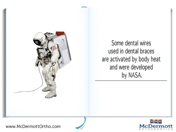 Orthodontic Fact #7: Some dental wires used in dental braces are activated by body heat and were developed by NASA. - McDermott Orthodontist, 708 Elm Ave. E., Delano, MN 55328, TEL: 763-972-4444 #orthodontist #invisalign #braces