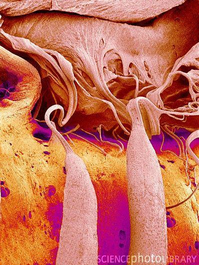 Micrografía electrónica de barrido coloreada (SEM) de la válvula tricúspide (superior derecha) vista desde el ventrículo derecho del corazón. Las cuerdas del corazón (estructuras filiformes) se conocen como las cuerdas tendinosas, y conectan las válvulas al músculo utilizado para controlar su apertura y cierre. La válvula tricúspide se encuentra entre la aurícula derecha y el ventrículo derecho, lo que ayuda a controlar el flujo de sangre entre las dos cámaras del corazón.