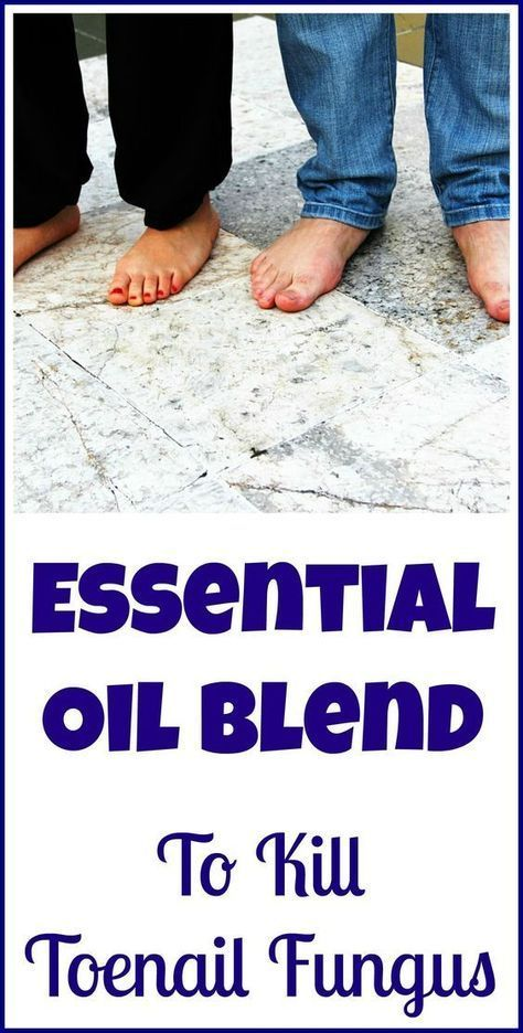 How to use essential oils to kill toenail fungus naturally, instead of drugs and their potential side effects.