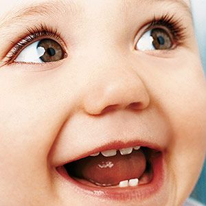 Teething Signs, Symptoms & Soothers: Discolored Teeth (via Parents.com)