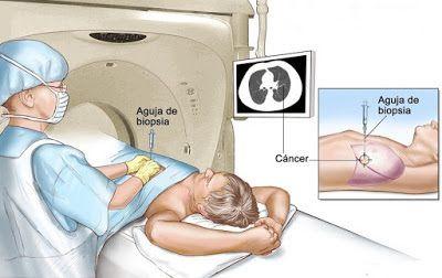 TU SALUD Y BIENESTAR : OJO!!: Efectos secundarios de la quimioterapia que...