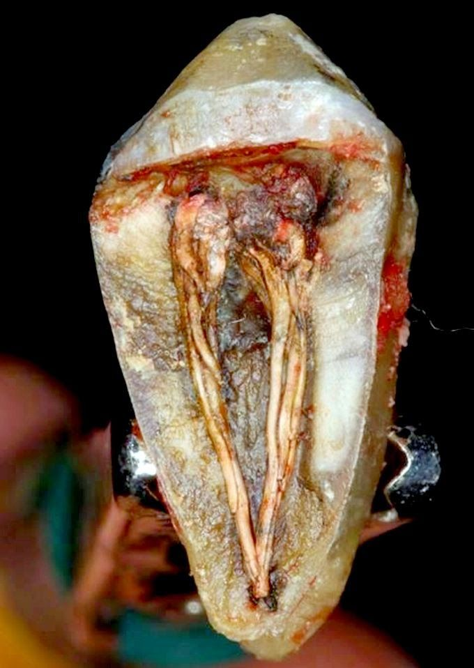 Autopsia dental, pocas veces visto ¿Diente vital o endodonciado?   OdontoMemes