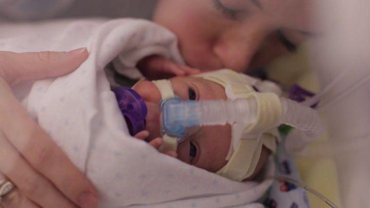 Benjamin Scot's son Ward Miles, born at 25 weeks pregnancy