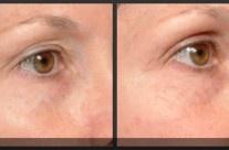 Laser solution for deep-set, hooded eyes: #Thermage laser skin tightening.