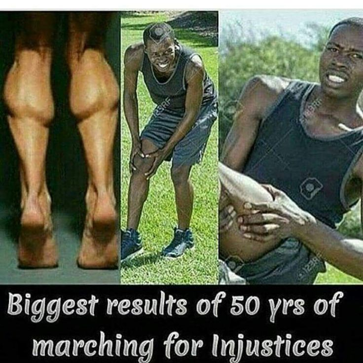 Biggest results of 50 years of marching for injustices:  leg spasms?