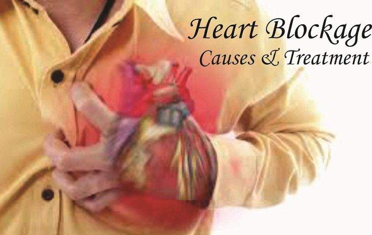 Heart blockage Causes, Symptoms, Cure, Treatment, Medicine and Specialist Doctor