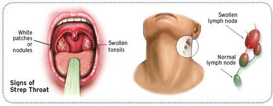 Diagram: signs of strep throat