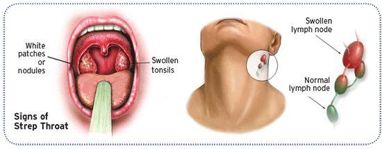 Diagram: signs of strep throat