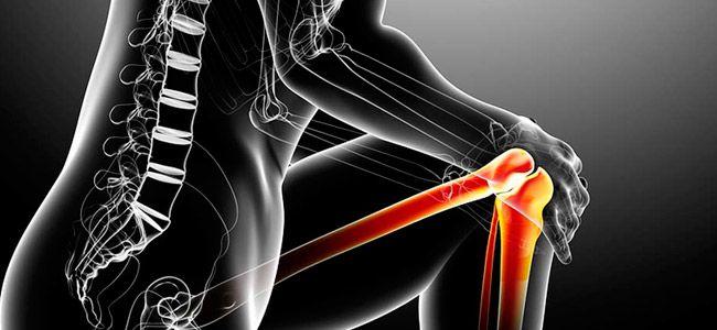 Rodilla de corredor es el término que utilizan los médicos para referirse a una serie de afecciones de la rodilla, como por ejemplo, el síndrome de dolor femororrotuliano y la condromalacia rotuliana.