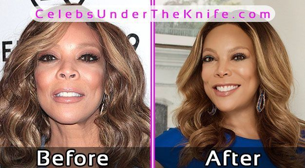 Wendy Williams Plastic Surgery Photos Before After #celebsundertheknife #celebs #celebrity #plasticsurgery #celebritysurgery