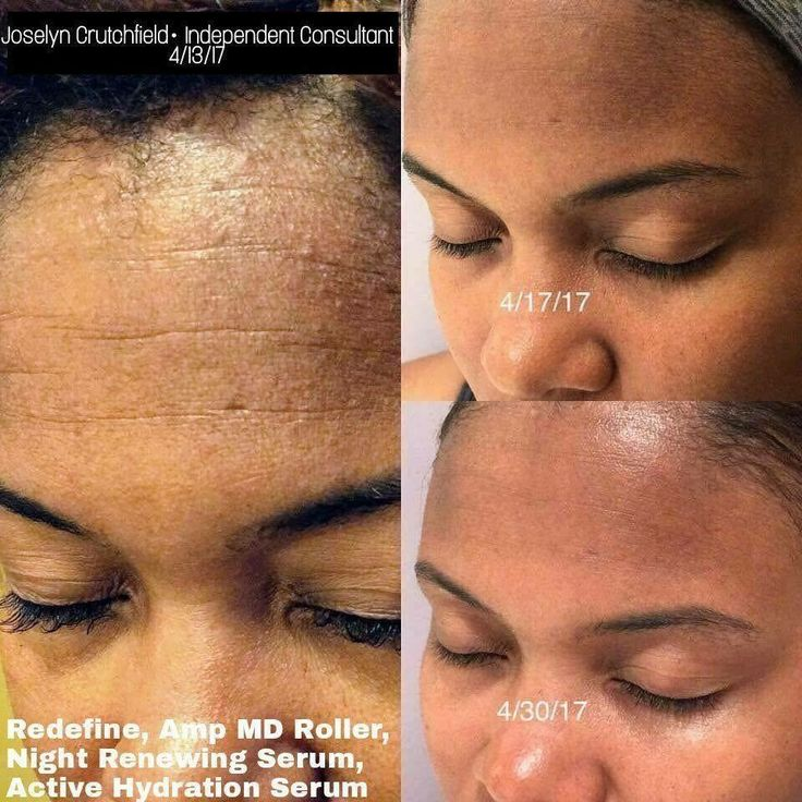 Rodan and fields redifine // rodan and fields Regimens // Rodan and fields // Rodan and fields redifine Regimen // Rodan and fields products // Rodan and fields before and after a // beauty // Skincare // Skin Care // Skin Care products // redifine // eyecream // anti aging // Rodan and fields marketing // social media // reverse // Unblemish // soothe // melasma // age spots // Rodan and fields lash Boost // social media // eyelashes // mascara