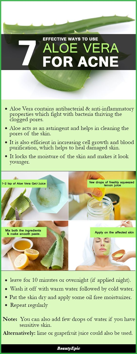 How to Treat Acne with Aloe Vera for The Best Results