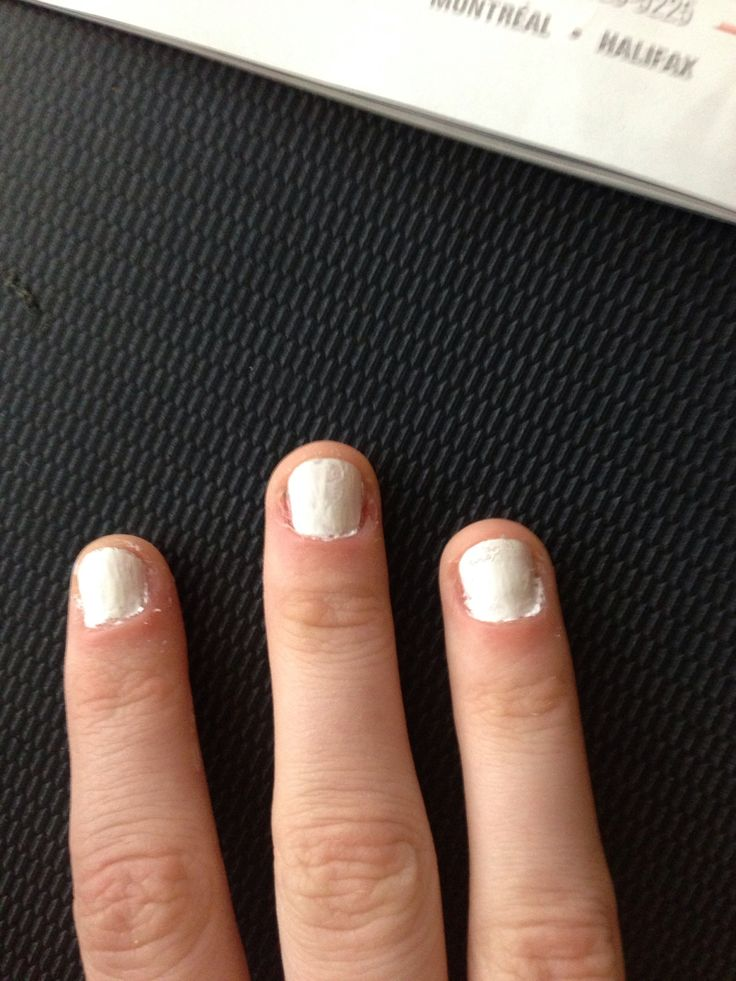 How to Fix and Grow Out Bitten Nails