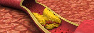 Cholesterol (Hyperlipidemia) Medical Health Quiz on eMedicineHealth.com