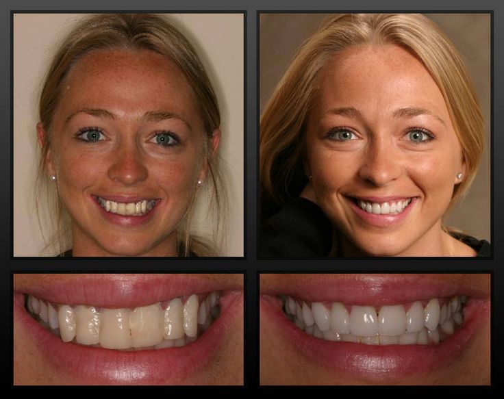 Dental Veneers Before After Fog 225 Szati H 233 Jak Előtte Ut 225 Na