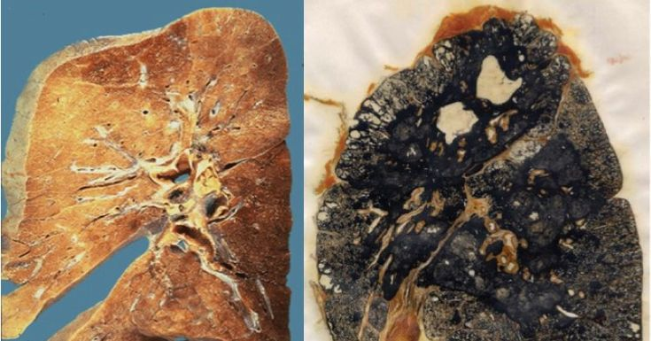 Hundreds of cases of advanced black lung disease have been found among miners in Central Appalachia, even as the Trump administration begins to review Obama-era coal dust rules.
