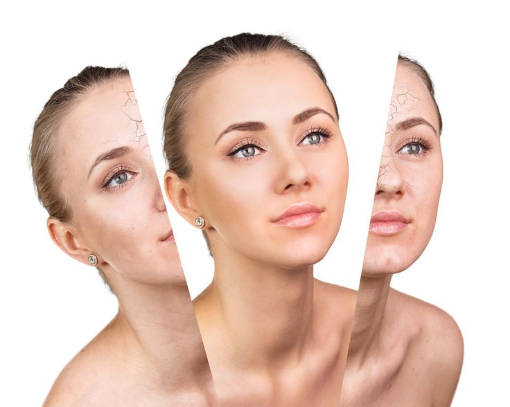 Why Skin Needling Is Brilliant?