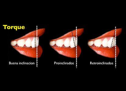 Estrategias para la correcta colocación de brackets protegiendo el Arco de Sonrisa Dr. Nasib Balut Ch.
