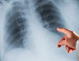 Pneumonia prevention: A reason to get the flu shot | Samaritan Healthcare