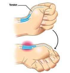 Hand rehab information for: DeQuervains tenosynovitis (Extensor Pollicis Longus and Abductor Pollicis Brevis) , Trigger finger, Mallet finger, Dupuytrens contracture, Cubital tunnel syndrome
