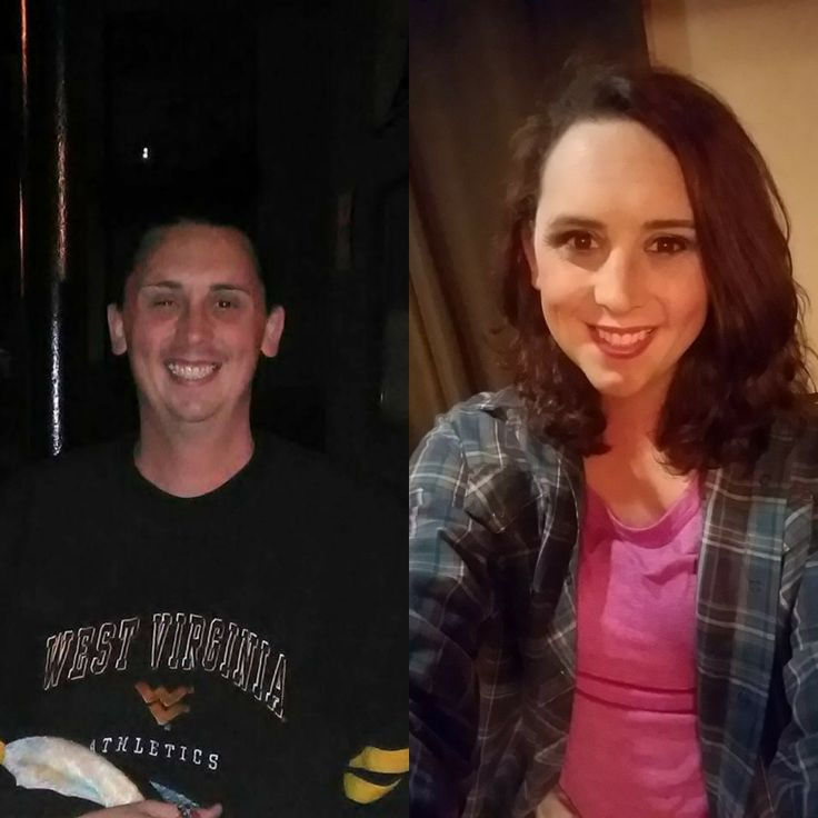 Mtf aesthetic, About a year apart. 1.5 months in HRT to 13.5 months.