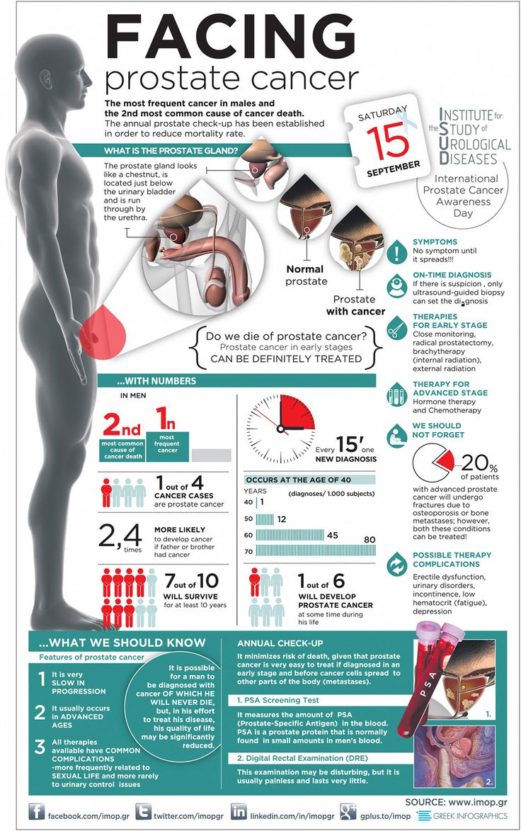 Prostate Cancer Facts and Statistics - Health Infographic #men #aging
