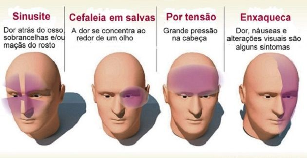 Saiba como diferenciar uma enxaqueca de uma dor de cabeça emocional | Cura pela Natureza.com.br