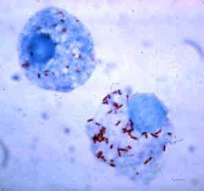 Tick hemolymph cells infected with Rickettsia rickettsii (Rocky Mountain Spotted Fever) http://eileenanddogs.com/2014/12/11/dangers-of-rocky-mountain-spotted-fever-for-dogs/