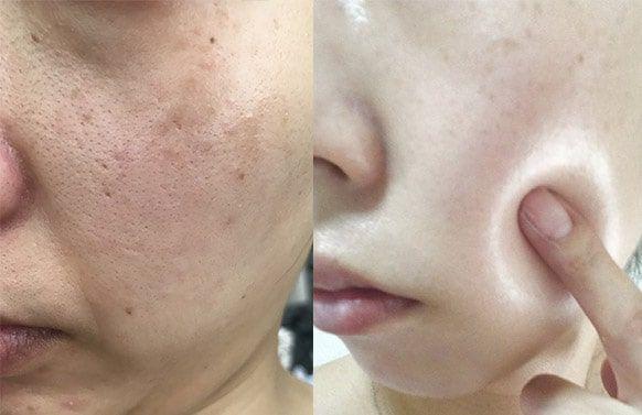 ネーヴェクレマ - pop - Prima【2020】 | 肌, 医療技術, 美白