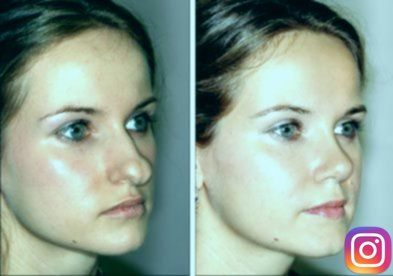 Sea Change after Nose Surgery. Rhinoplasty before …