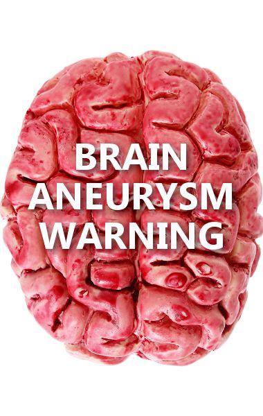 30 best brain aneurysm images on pinterest, Cephalic Vein