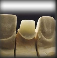 Stiftaufbau Keramik für Zahnkrone