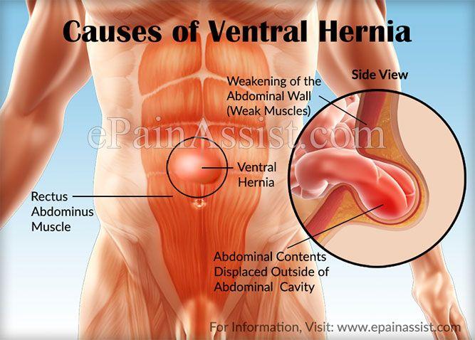 Laparoscopic abdominal hernia repair side effects