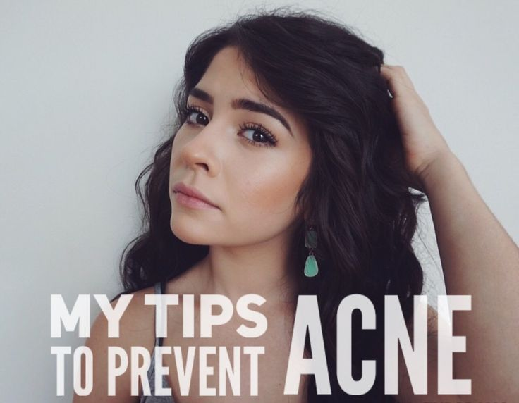 I want to help you have the clearest skin possible! Here are my tips to prevent acne.
