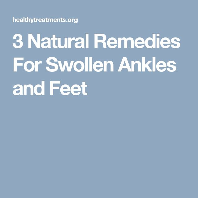 3 Natural Remedies For Swollen Ankles and Feet