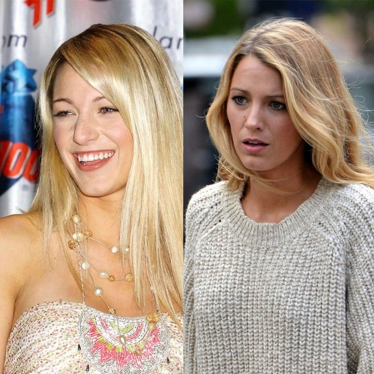 BIG | Fun - Before and after: 10 x celebrity nose jobs (Blake Lively, Britney Spears and 8 more)