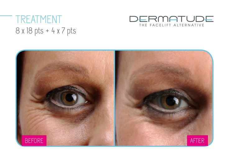 Before and After eyes #Dermatude