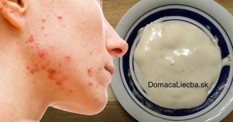 Trápi vás akné, vyskúšali ste už skoro všetko, no nedokážete sa ho zbaviť? Skúste namiesto rôznej kozmetiky aplikovať túto prírodnú masku.