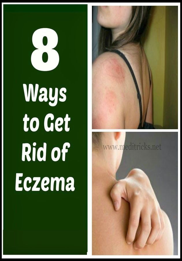 how to get rid of eczema medi tricks fit and healthy pinterest. Black Bedroom Furniture Sets. Home Design Ideas