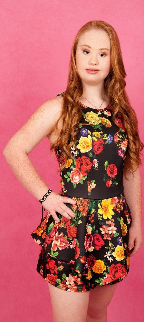 Madeline Stuart is an 18-year-old girl with Down Syndrome who wants to break into the modeling agency —and she looks great in a floral sundress!